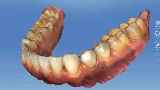 cerec scan veneers