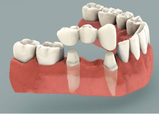 dental-crowns-bridges