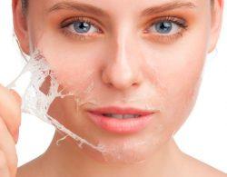 face-peeling