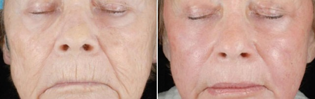 Advanced CO2 Fractional Laser Technology