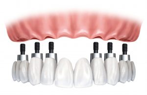 Dental implants are the best way to replace missing teeth