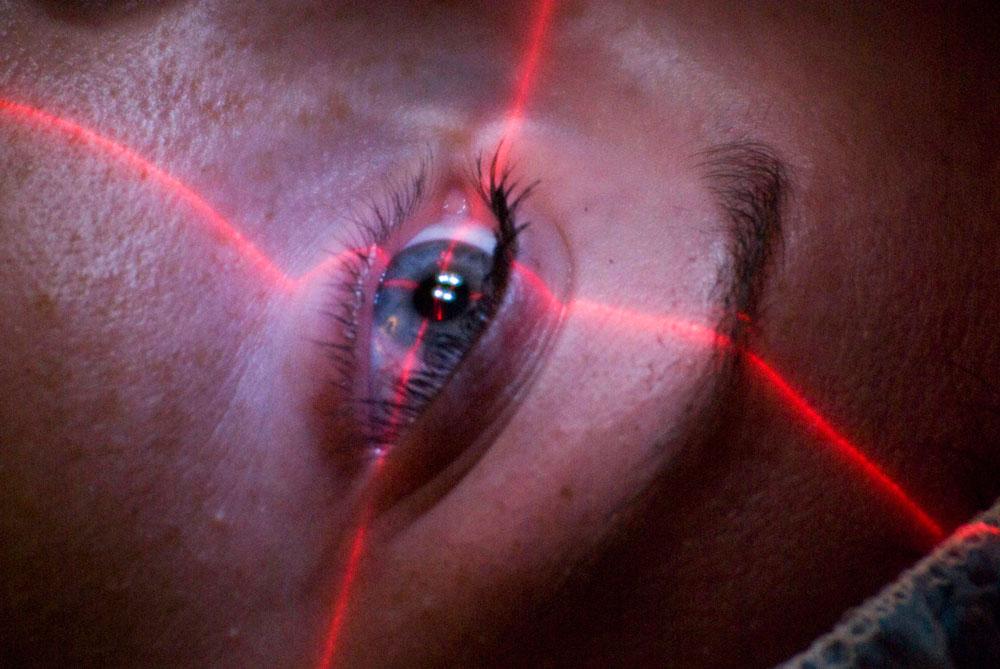 laser-eye-surgery-lima