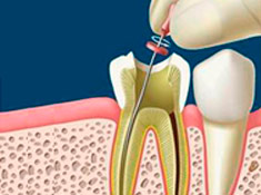 peru-root-canal-treatment