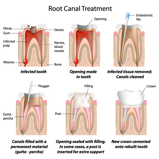 surgery-peru-root-canal-treatmet