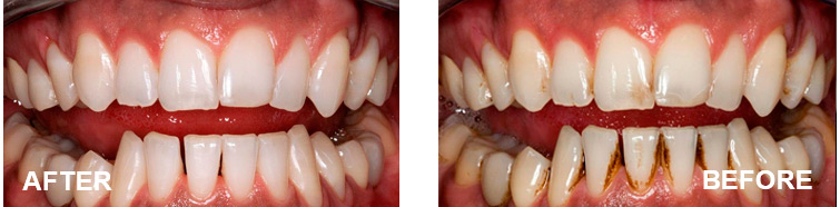 surgical-peru-teeth-whitening