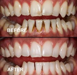 teeth-whitening-bannee2