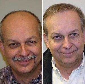 Hair Transplants Lima Peru