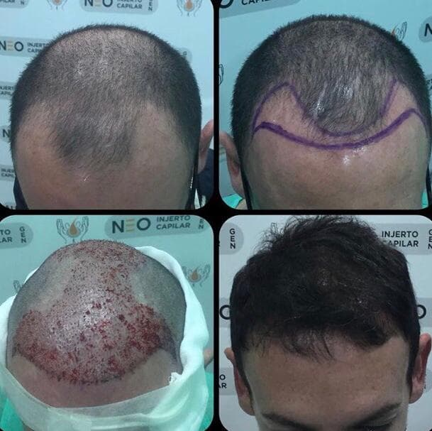 Hair Transplants LimaPeru