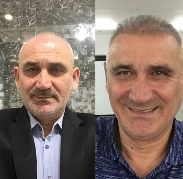 Hair Transplants