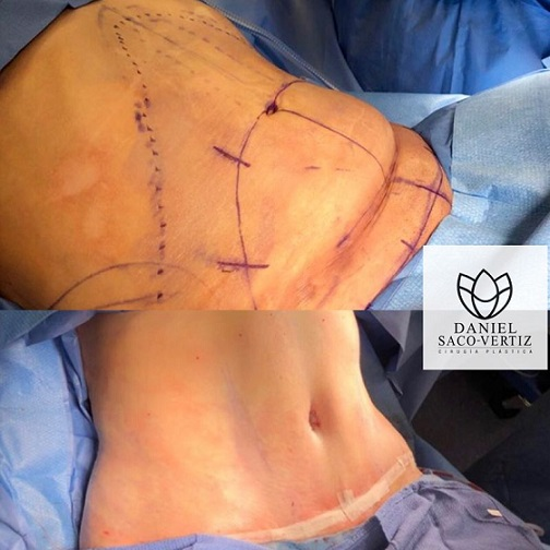 abdominoplasty and bbl