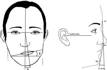 Asimetría facial – condilectomía