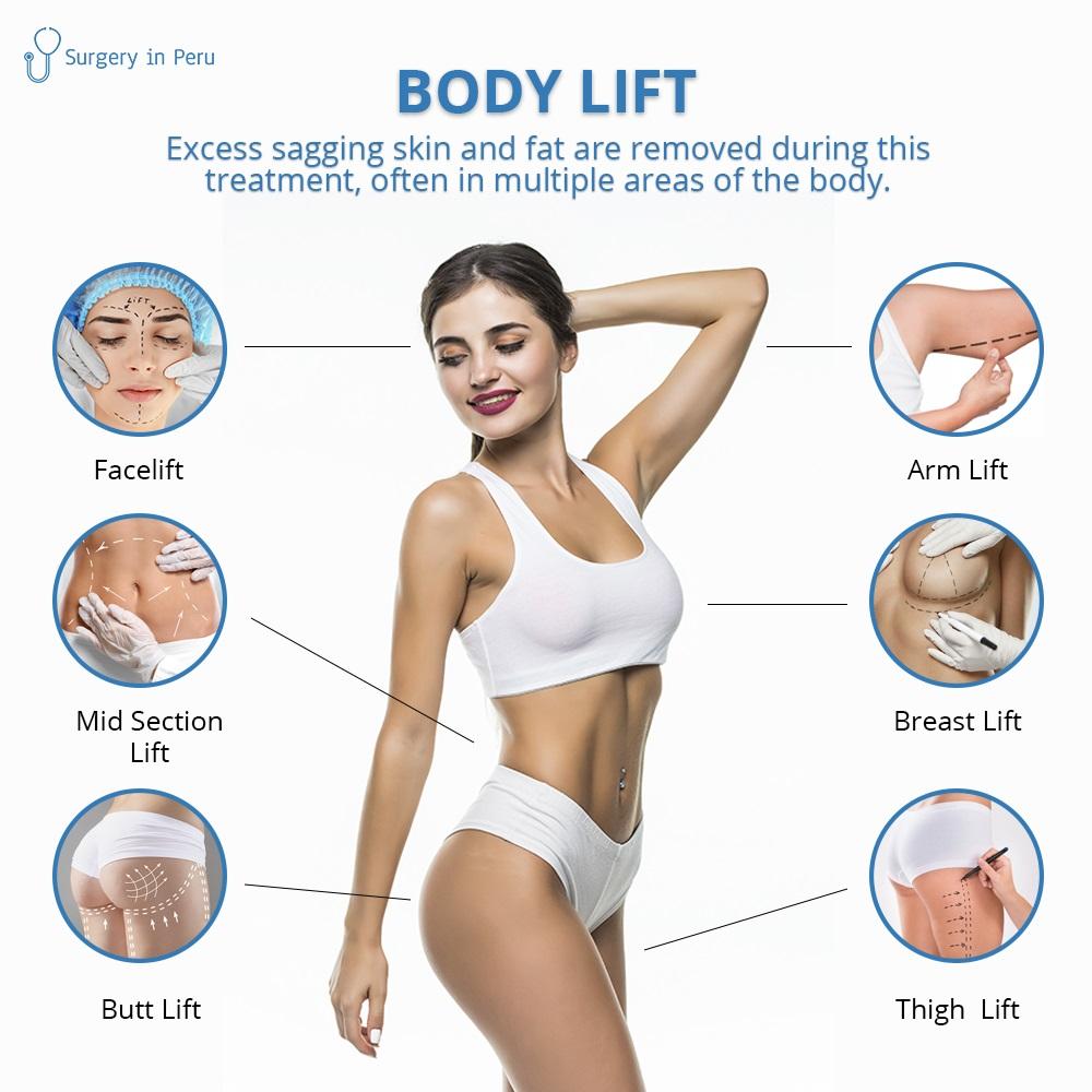 body lift lima peru