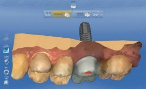 dental teeth implants lima