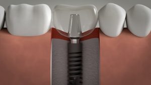 dental implants lima peru