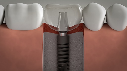 Dental implant lima