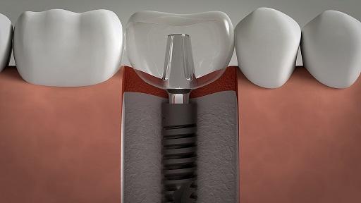 Dental implant lima