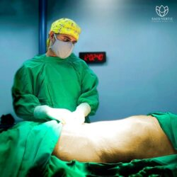 Tummy tuck and BBL