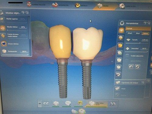 tratamientos dentales en Perú