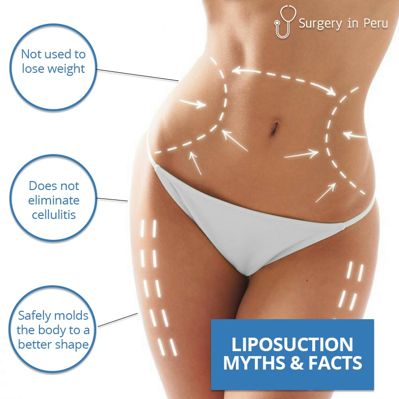 liposuction myths and facts