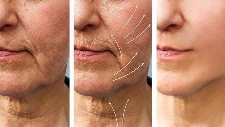 Lifting Facial con Lipotransferencia
