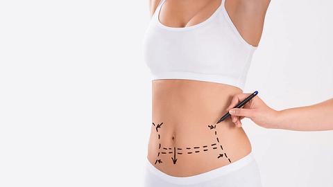 Mini abdominoplasty