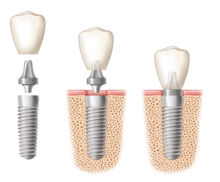 dental implants lima
