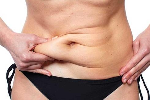 abdominoplasty y mastopexy cover