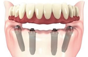 all-on-4-dental-implants-lima-peru