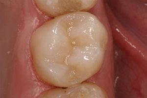 amalgam removal inlay