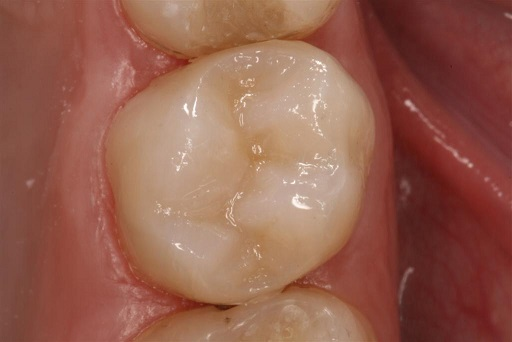 amalgam removal inlay