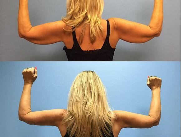 arm-lift-lima