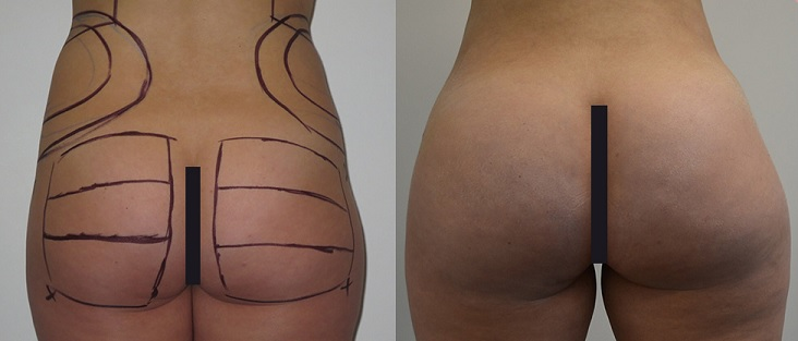 buttock augmentation lima