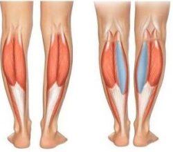 calf implants lima