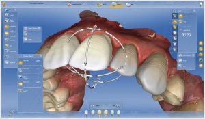 dental veneer scan