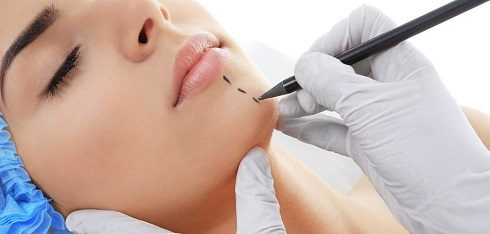 chin implant lima