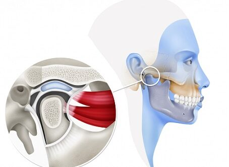 cirugía de articulación temporomandibular
