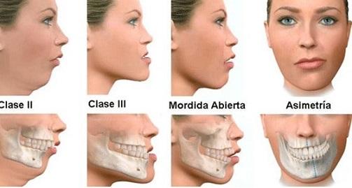 cirugia maxilofacial ortognatica lima