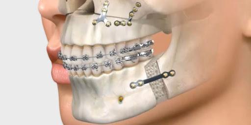 cirugía maxilofacial lima peru