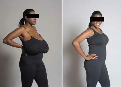 cirugia-reduccion-de-mamas