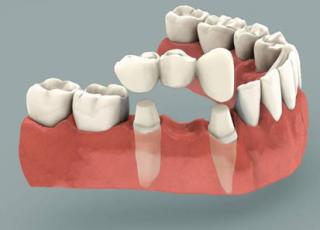 dental-crowns-bridges
