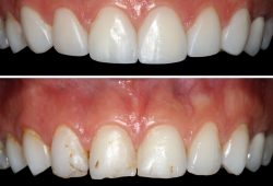 dental-crowns-bridges3