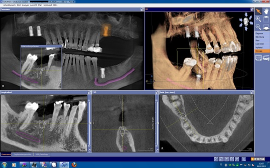 dental implant planning