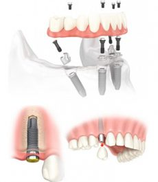 dental-rehabilitation-reconstruction2