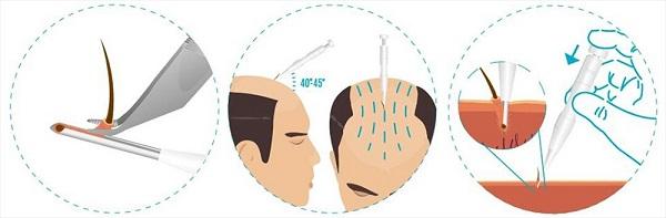 direct hair implantation dhi