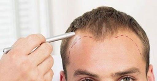 dhi hair transplants