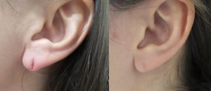 torn earlobe repair surgery