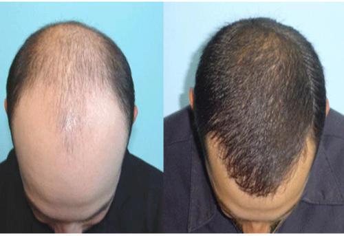 hair transplant lima