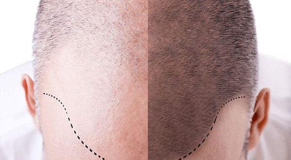 cuántos trasplantes de cabello se necesitan