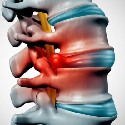 back hernia lima peru chiropractor