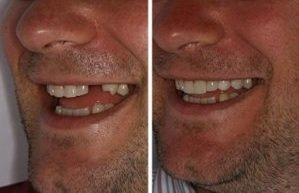 implantes dentales lima